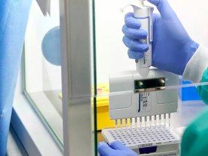 Türkiye'den Almanya'ya dönenen 1134 kişide koronavirüs tespit edildi